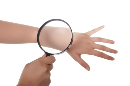10450129 - hand, magnifying glass and skin