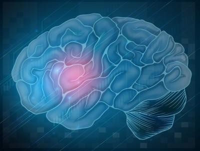 Brain (3)